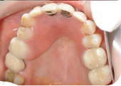 partial acrylic dentures