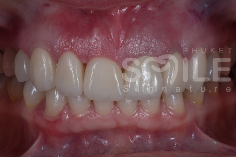 Phuket Tooth Crowns