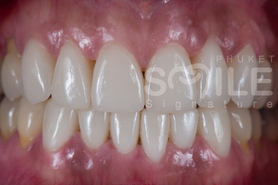 Dental Veneers Phuket