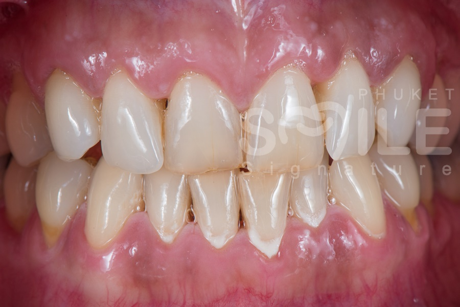 Dental Crowns Phuket