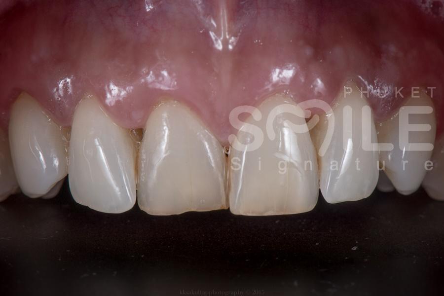 Dental Veneer Phuket