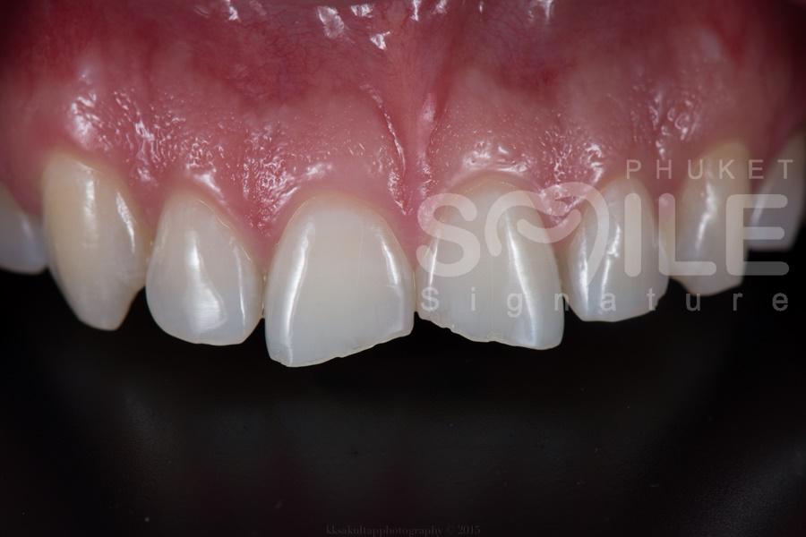 Phuket Dental Veneer