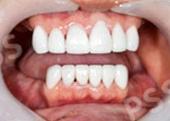 teeth crowns bridges
