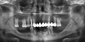 Poor teeth