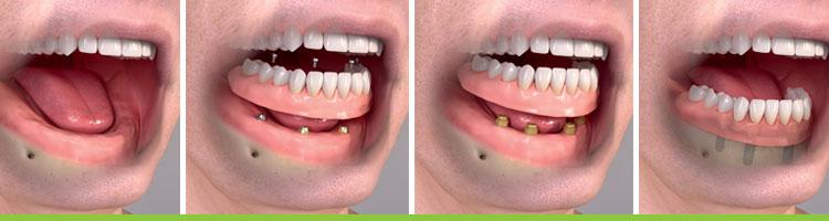 Full Jaw Implant Procedure