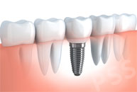 dental implant crown