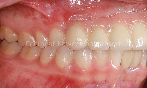 Tooth implant bridge