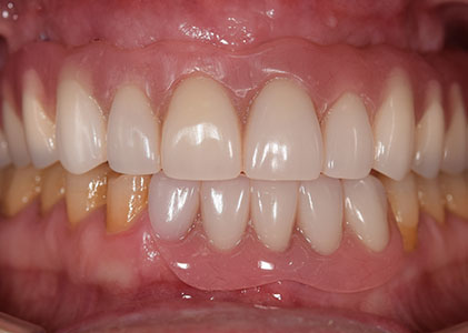 partial full dentures
